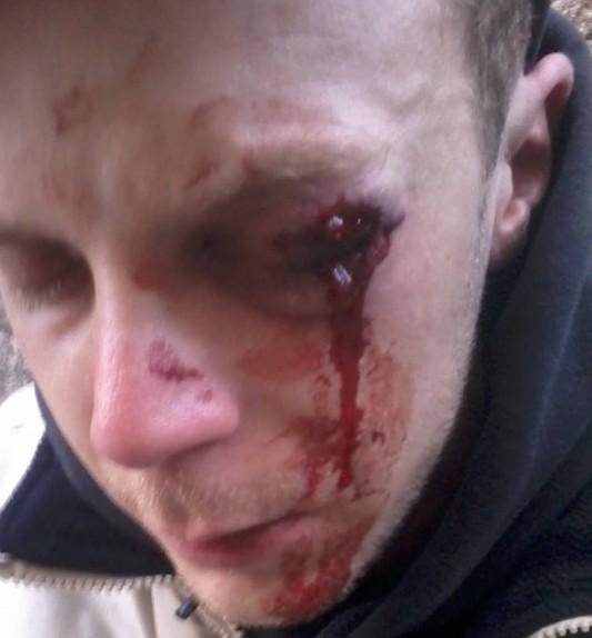 Damien T. , juste après la blessure.