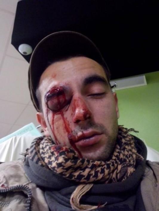 Photo : autoportrait d'Emmanuel à l'hôpital le 22 février 2014, jour de la manifestation anti-aéroport).